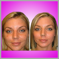 Glycopeel before and after