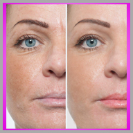 skin treament before and after