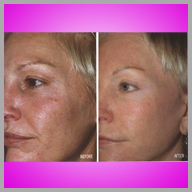 skin treatment before and after